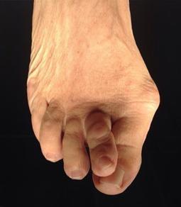 Galindo. Deformitat dits peu.