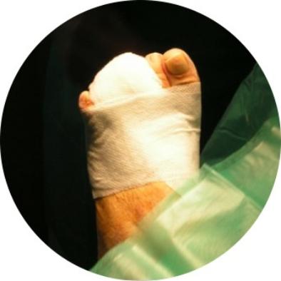 podologiapremia-cirurgia-podologica
