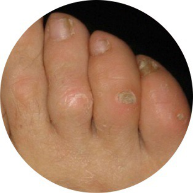 podologiapremia-podologia-dermatologica