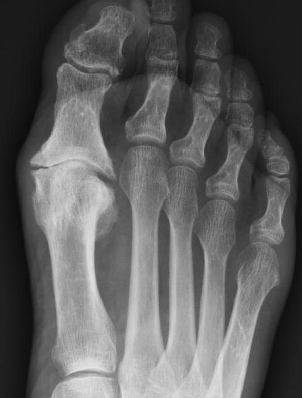 artrosi peu