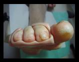 Ortoesis de silicona dits peu.